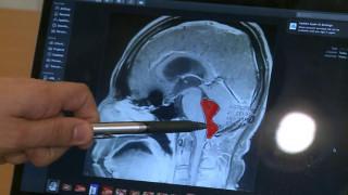 Ανατριχιαστική διάγνωση: Πού οφείλονταν οι χρόνιοι πονοκέφαλοι