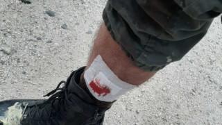 Πεδίο μάχης η Μυτιλήνη: Αστυνομικός τραυματίστηκε από σκάγια