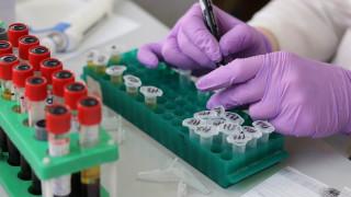 Τεστ αίματος θα μπορεί να διακρίνει αν τα προβλήματα μνήμης ενός ασθενούς οφείλονται σε Αλτσχάιμερ