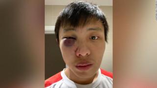 Κορωνοϊός: Καταγγελία φοιτητή για άγριο ξυλοδαρμό - Του φώναξαν «δεν θέλω τον κορωνοϊό σου»