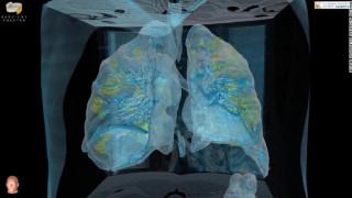 Κορωνοιός: 3D βίντεο αποκαλύπτει τις βλάβες που προκαλεί ο ιός στους πνεύμονες