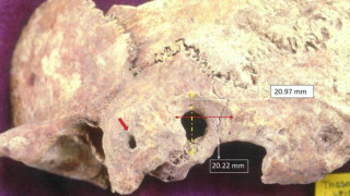 Θάσος: Βρέθηκε κρανίο πρωτοβυζαντινής περιόδου με ίχνη «πολύπλοκης χειρουργικής επέμβασης»