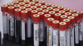 Νέο αιματολογικό τεστ δίνει ελπίδες για την έγκαιρη διάγνωση πολλών καρκίνων ταυτόχρονα