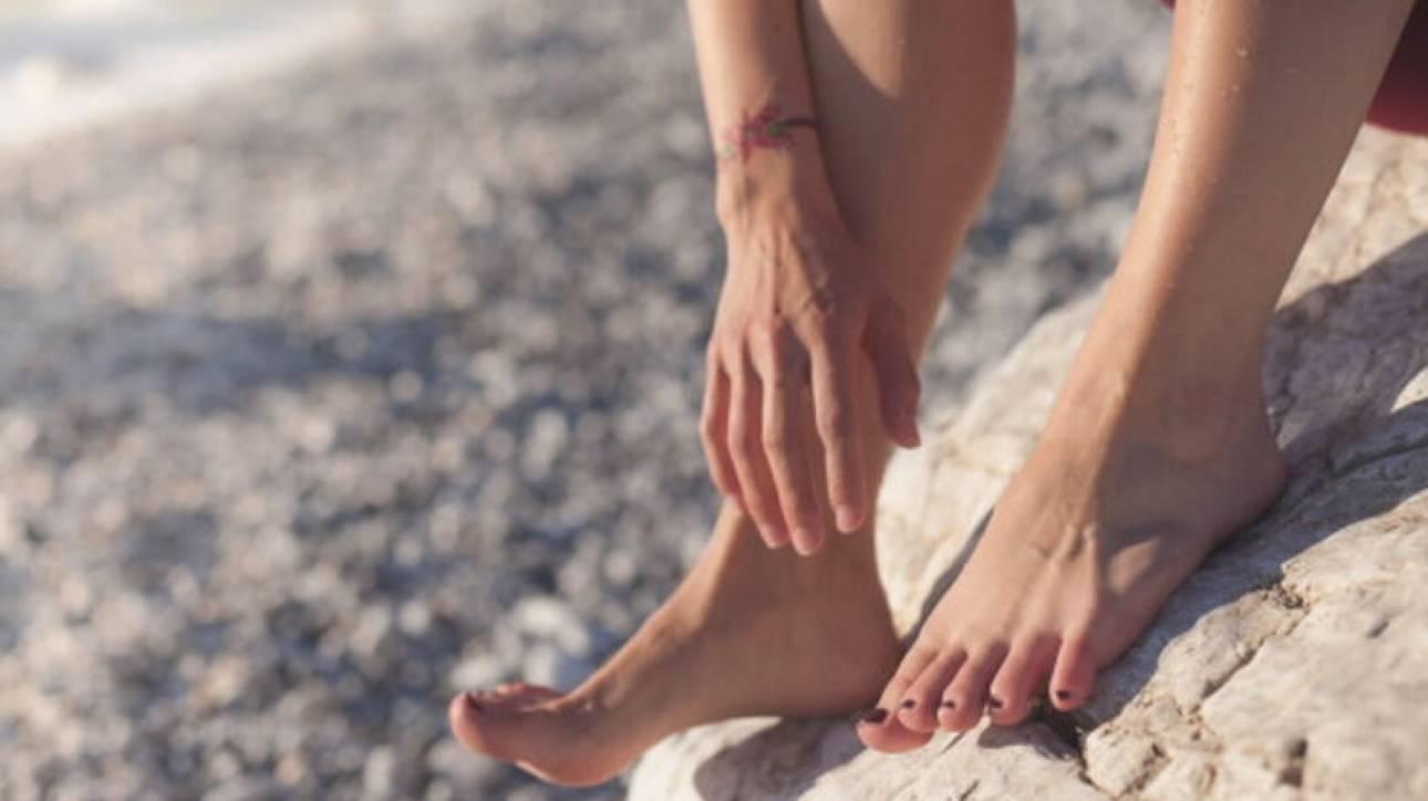 Μύκητες στα πόδια και πώς θα τους αντιμετωπίσετε