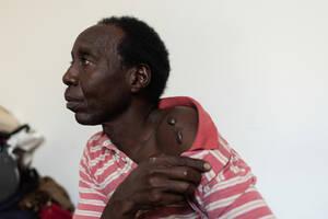 Ο Μουαβία, 38 ετών από το Νταρφούρ του Σουδάν, δείχνει τις ουλές στον ώμο του, που έγιναν – όπως λέει- όταν απήχθη για λύτρα από εγκληματικές ομάδες στη Λιβύη. Ο Μουαβία διέφυγε από τον πόλεμο στη χώρα του και ήρθε στη Λιβύη πριν από 10 χρόνια. Άφησε την