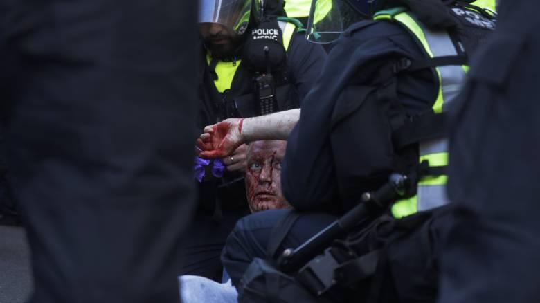 Η ιστορία μιας φωτογραφίας: Μαύρος μεταφέρει λευκό τραυματία στα επεισόδια του Λονδίνου
