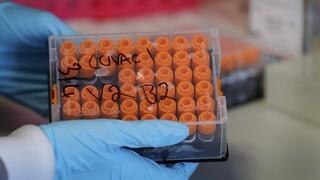 Κορωνοϊός: Μαζικό εμβολιασμό ετοιμάζει η Ρωσία - Σε ποιους θα δοθεί προτεραιότητα