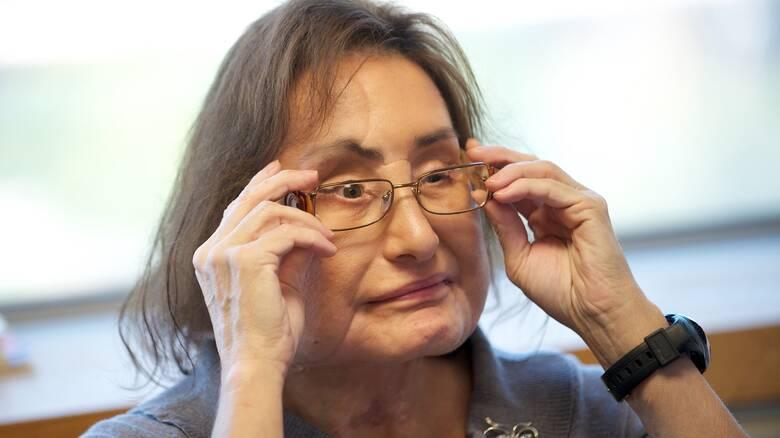 Κόνι Καλπ: Πέθανε η πρώτη Αμερικανίδα που είχε υποβληθεί σε μεταμόσχευση προσώπου