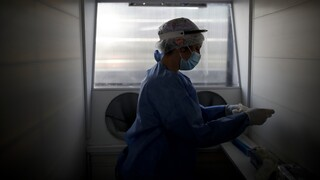 Έρευνες: Λύκος και αρθρίτιδα δεν λειτουργούν επιβαρυντικά στον κορωνοϊό