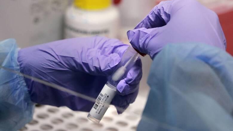 Κορωνοϊός: Οι ασθενείς παράγουν αντισώματα ακόμη και επτά μήνες μετά τη λοίμωξη