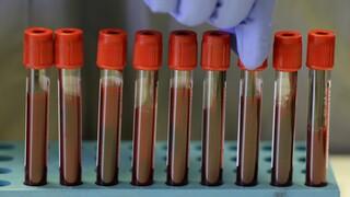 Τσακρής για νέο στέλεχος:  Αδιευκρίνιστο αν επηρεάζει διαγνωστική ικανότητα τεστ και εμβόλια