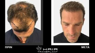 Η επανάσταση και το μέλλον της μεταμόσχευσης μαλλιών είναι οι συνδυαστικές τεχνικές FUE & Microstrip