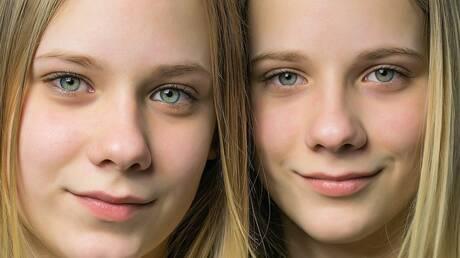 Νέα έρευνα: Τελικά οι πανομοιότυποι δίδυμοι δεν είναι και τόσο… πανομοιότυποι