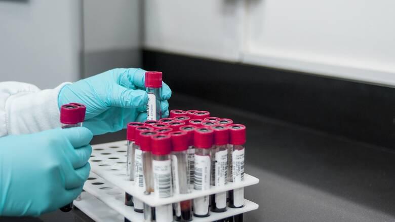 Νέοι βιοδείκτες αίματος επιτρέπουν την πρόβλεψη των ασθενών με τον υψηλότερο κίνδυνο βαριάς Covid-19