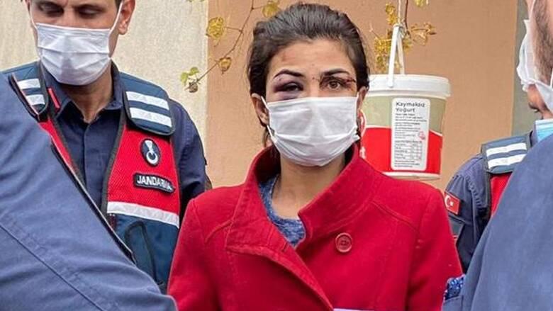 Τουρκία: Ελεύθερη η 31χρονη που σκότωσε τον σύζυγό της μετά από 12 χρόνια βίας