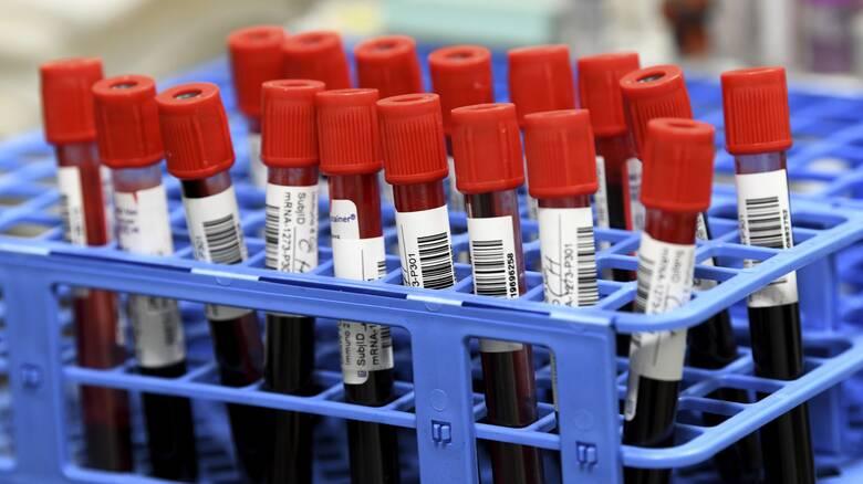 Κορωνοϊός: Για τουλάχιστον οκτώ μήνες μετά τη μόλυνση παραμένουν αντισώματα στο αίμα
