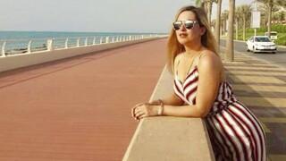 Επίθεση με βιτριόλι - Ιωάννα: «Προσπαθώ να αποδεχτώ την εικόνα μου»