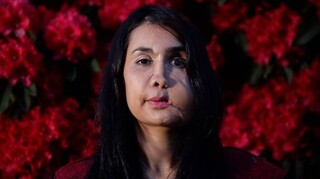 Αφγανιστάν: Την πυροβόλησε ο άνδρας της στο πρόσωπο – Αλλά απέδειξε πως είναι «άθραυστη»