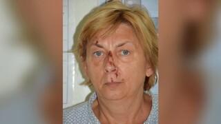 Αίνιγμα στην Κροατία: Βρέθηκε γυναίκα σε νησί – Δεν θυμάται το όνομά της ούτε πώς πήγε εκεί